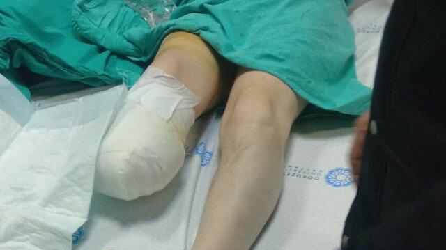 Ameliyattan sonra enfeksiyon kapan bacağı kesildi