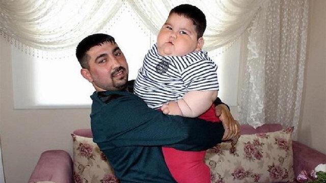 Yağız bebek 55 kiloya ulaştı