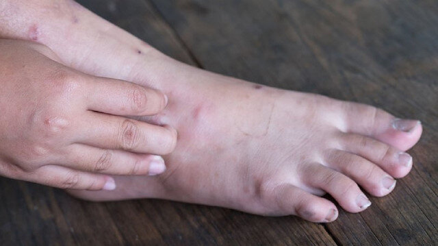 Diyabet hastaları ayak sağlığına dikkat: 12 adımda korunma yöntemleri