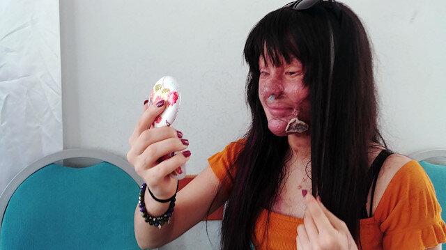 Asit saldırısına uğrayan Berfin'in gözleri de ameliyat edilecek