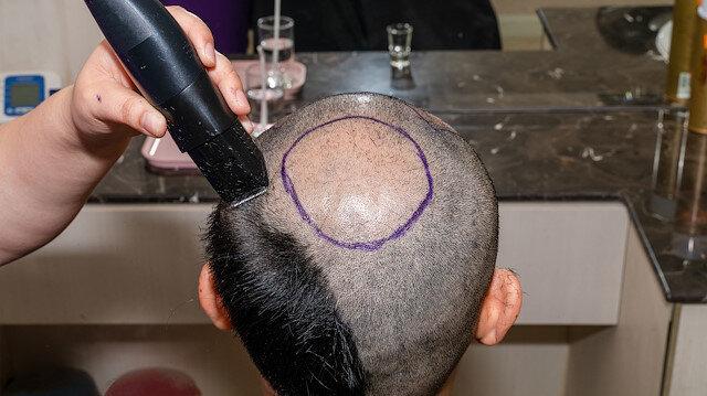 Saç ekim merkezlerinin yüzde 65'i kaçak!
