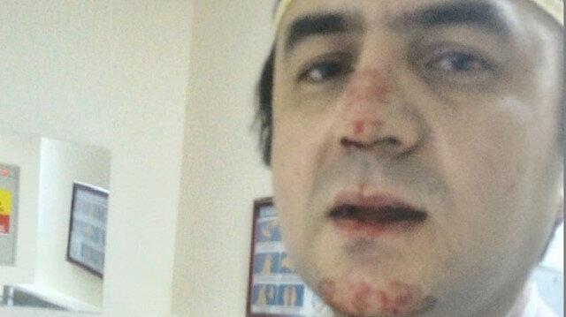 Doktor, burnunu kıran saldırganın eşine doğum yaptırdı