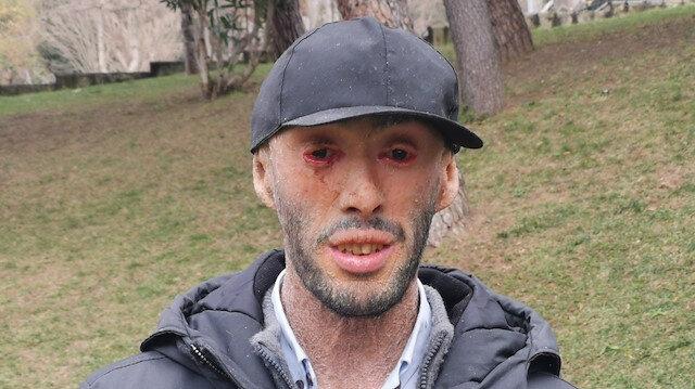 Cilt hastası Refik Töre, tedavi umuduyla İstanbul'a geldi: Benden çekiniyor, kaçıyorlar
