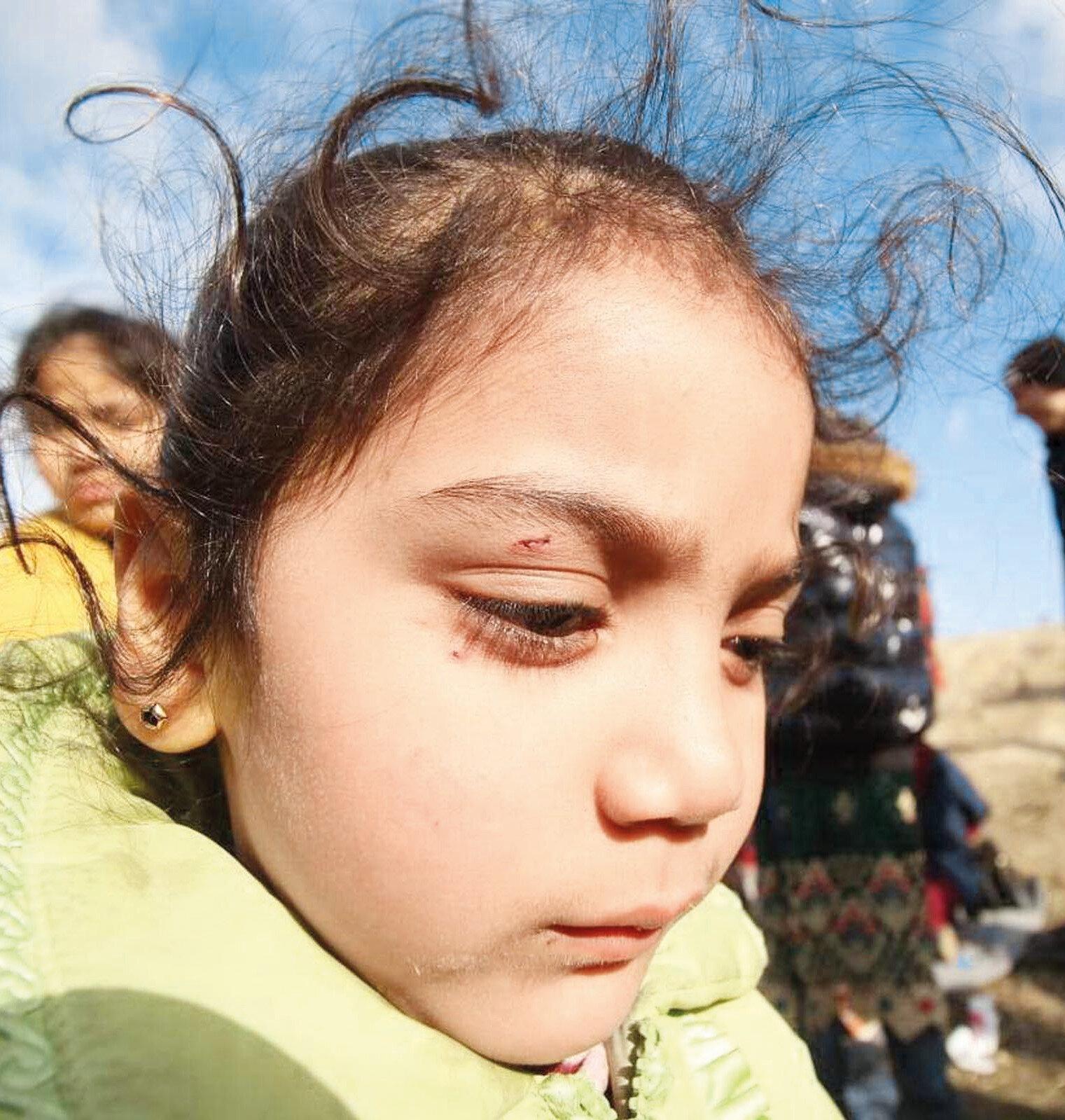 Yunan askerlerin müdahalesi sonucu çocuklar yüzlerinden yaralandı.