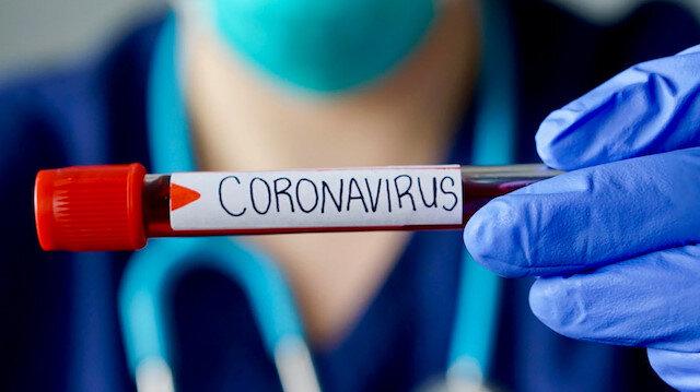 Dünyada koronavirüsten iyileşenlerin sayısı 86 bini geçti: Türkiye ve dünyada son durum