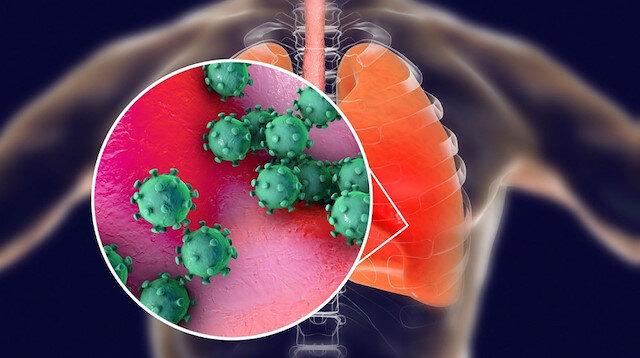Bilim Kurulu Üyesi açıkladı: Koronavirüs sıcak illerde daha hızlı kırılabilir