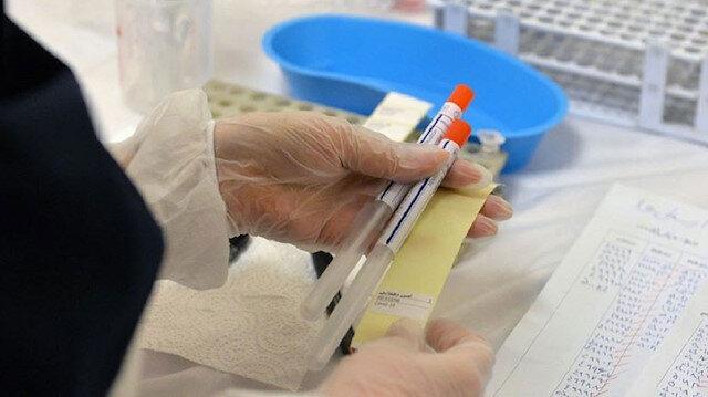 Sağlık Bakanlığı açıkladı: 'İmmün plazma temini'ne ilişkin kriterler belirlendi
