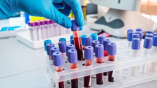 Koronavirüs testlerinde yeni dönem: Farkında olmadan salgını geçirip iyileşen kişiler belli olacak