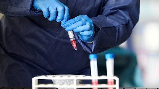 Türk hekimler başardı: Koronavirüsün parmak izi ortaya çıkarıldı