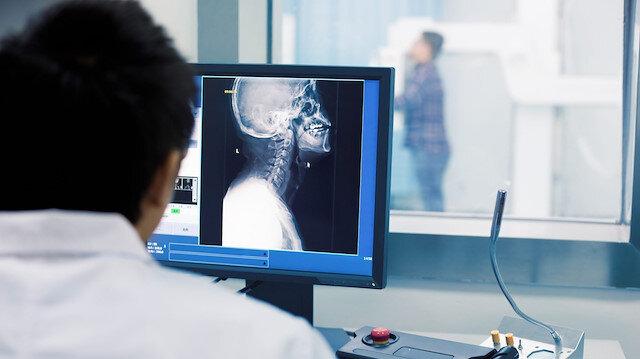 Yerli solunum cihazından sonra mobil dijital röntgen cihazı geliyor