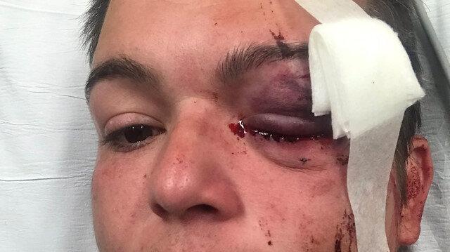 ABD'de protestolarda gazeteci gözünden vuruldu