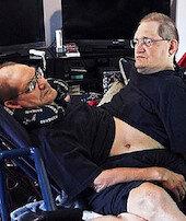 En uzun yaşayan yapışık ikizler hayatını kaybetti