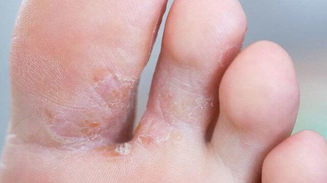 Ayak mantarının oluşmasına neden olan 8 yanlış