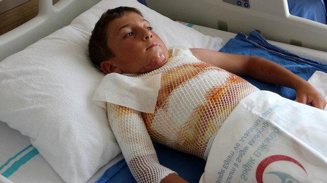 Ardahan'da korkunç olay: Gömleğindeki ipi yakmak isterken alev aldı