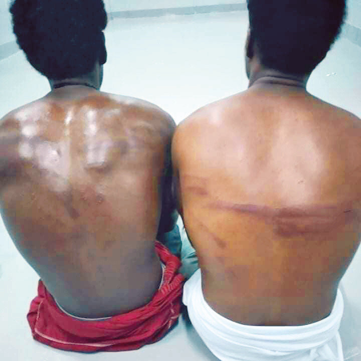 Riyad yönetimi göçmenleri gözaltına alıp işkence ediyor.