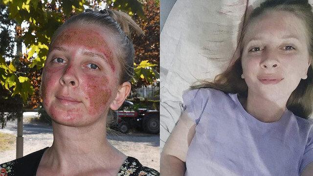 Cilt bakımı yaptıran 29 yaşındaki Müge'nin yüzünde ikinci derece yanık oluştu: Aynaya bakamıyorum, sosyal hayata karışamıyorum