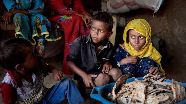 BM: Yemen'de her beş kişiden birinde ruhsal bozukluk var