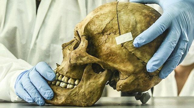 Bilim insanlarından ilginç açıklama: Kafatasında yeni bir organ bulduk
