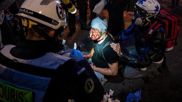 Suriye'de yaşamadığı şiddeti Fransa polisi yaşattı: Genç gazeteci öldüresiye dövüldü