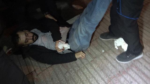 Basın mensubuna çirkin saldırı: 'Eski boksörüm' dedi burnunu kırdı