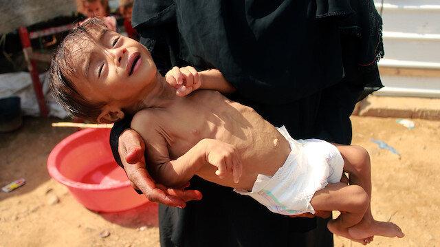 """""""Yemenliler 'aç kalmıyor', açlıktan ölüyor"""""""