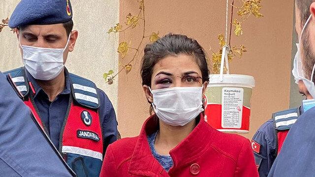 Kendisine işkence yapan eşini öldüren Melek İpek'in tutukluluğuna itiraz edildi: Maktulün şiddetine maruz kalan bir kadın daha var