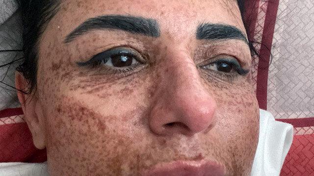 Güzellik salonu yüzünü yaktı: Üstüne bir de tehdit edildi