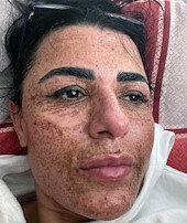 Sosyal medya reklamlarına kandı yüzü yandı