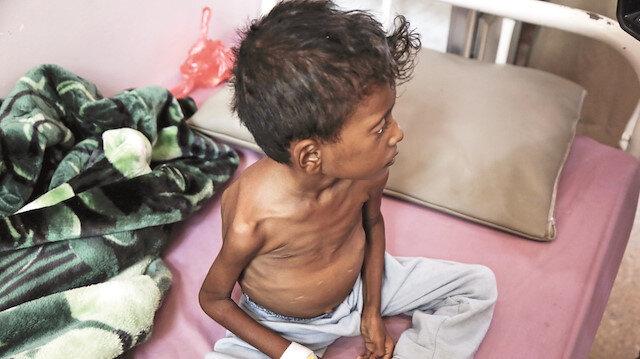 Yemen'de 400 bin çocuk hayatını kaybedebilir