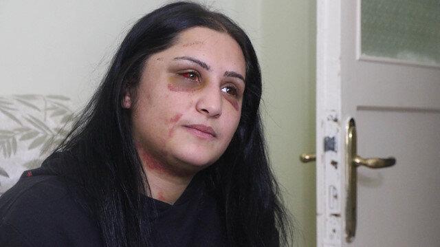 Samsun'da eski eşinin darp ettiği kadın: Şiddet sessiz kalındıkça çoğalıyor