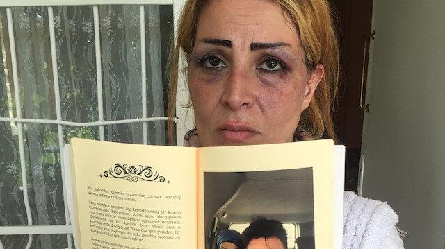 Öldüresiye dövdüğü karısı için aşk kitabı yazmış: Eskiden başımdan aşağı güller döküyordu