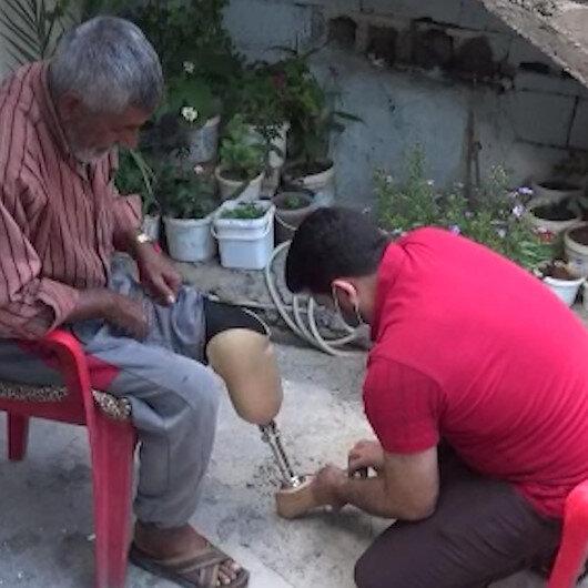 Ayağı kesilen Türk vatandaşına Suriyeli doktordan ücretsiz protez