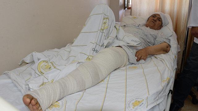 Korona korkusundan doktora gitmeyen yaşlı kadın bacağından oluyordu: Uyluğundan 5 kilo tümör çıktı