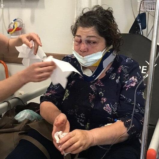 Eynesil'de dehşet: 'Park bakımsız' diyen kadını CHP'li başkanın adamları öldüresiye dövdü
