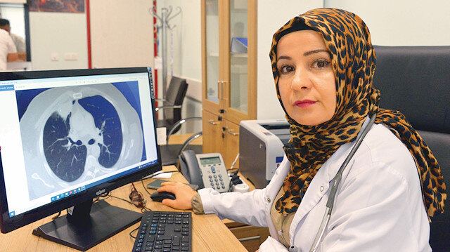 Koronavirüs akciğer kanserini taklit etti