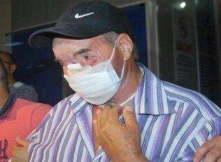 Yüz nakli hastası uyandırıldı
